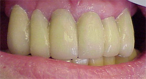 Tooth Colored Fillings Implant Cosmetic Dental Center