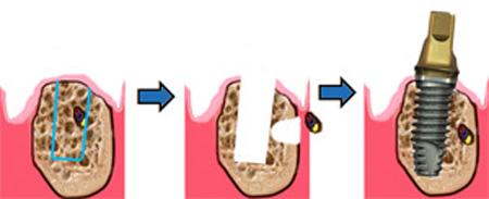 Inferior Alveolar Nerve Repositioning- IMPLANT COSMETIC DENTAL